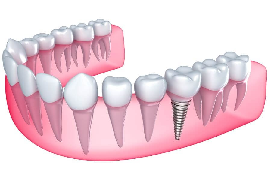 Dentist in Weston Dental implant in the gum - Isolated on white